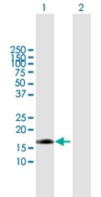 Endothelin 2 Antibody 005 mg